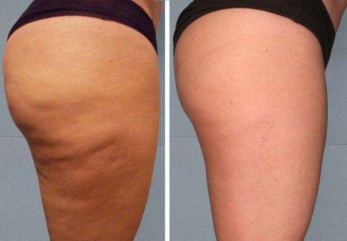 anti-cellulite-avant-apres