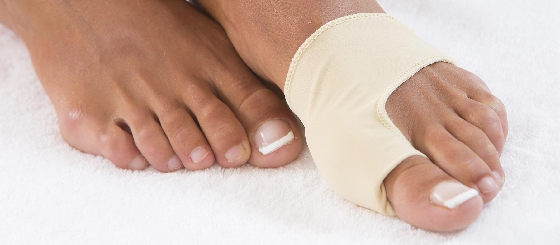 Hallux Valgus, une maladie du pied